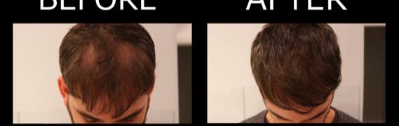 Alternativen bei Haarausfall? Was kann ich tun?